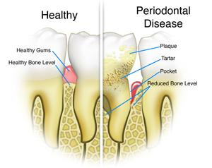 Healthy Teeth VS Periodontal